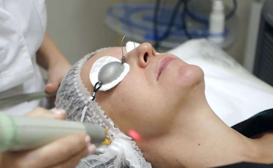 Лазерное омоложение кожи Laser Genesis