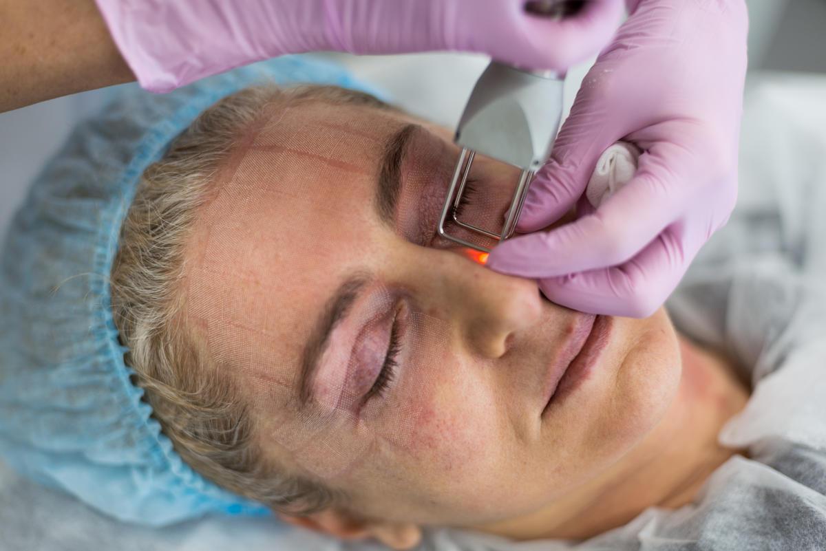 Шлифовка кожи в Москве лазером Deka - цены в клинике Vitaura