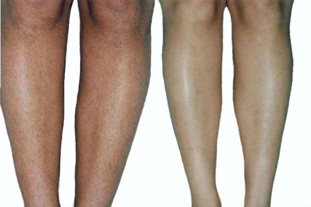 Фотоэпиляция голеней в клинике Vitaura