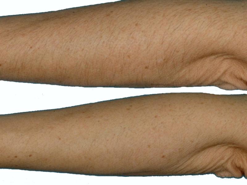 Фотоэпиляция рук в клинике Vitaura