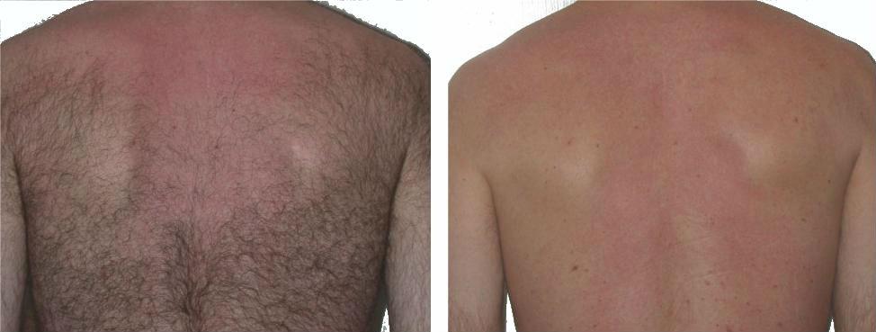 Фотоэпиляция спины в клинике Dr.Meso