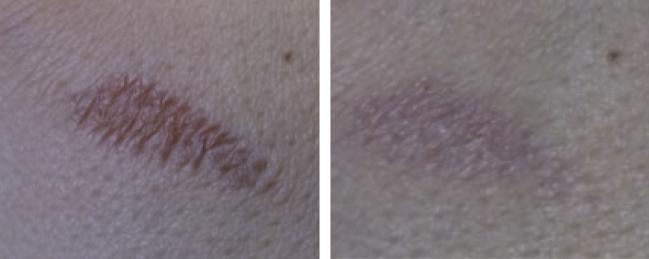 Аппаратный массаж Icoone Laser MMAS