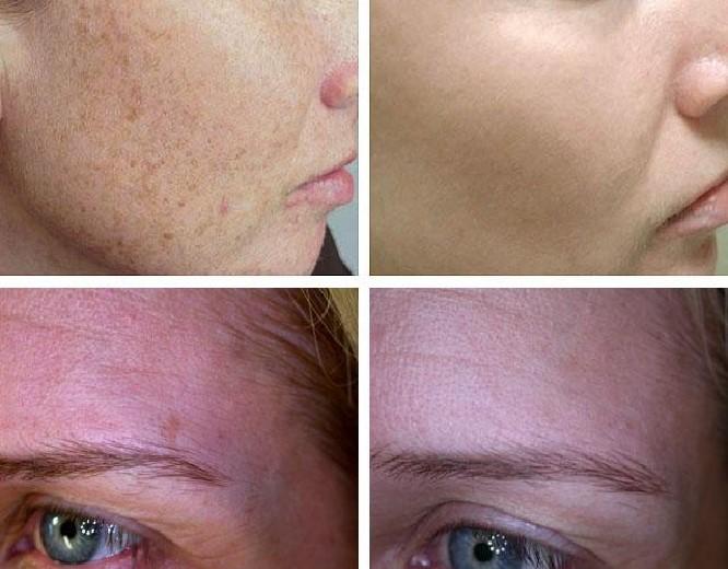 Лечение пигментации на лице