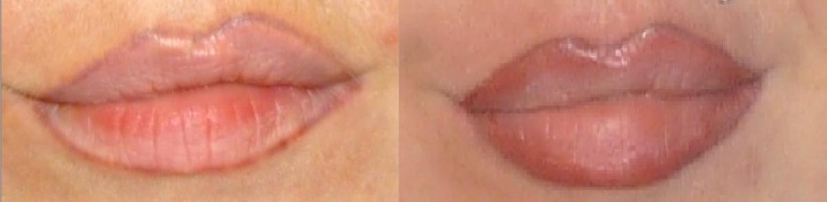 Обновить татуаж губ