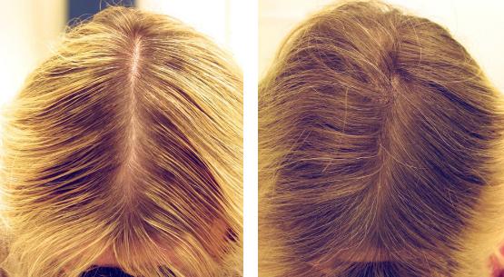 мезотерапия волос фото до и после
