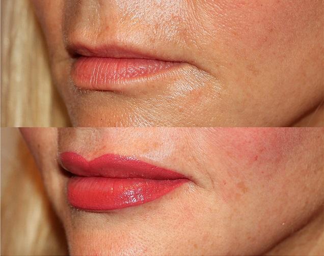 Особенности процедуры перманентного макияжа губ