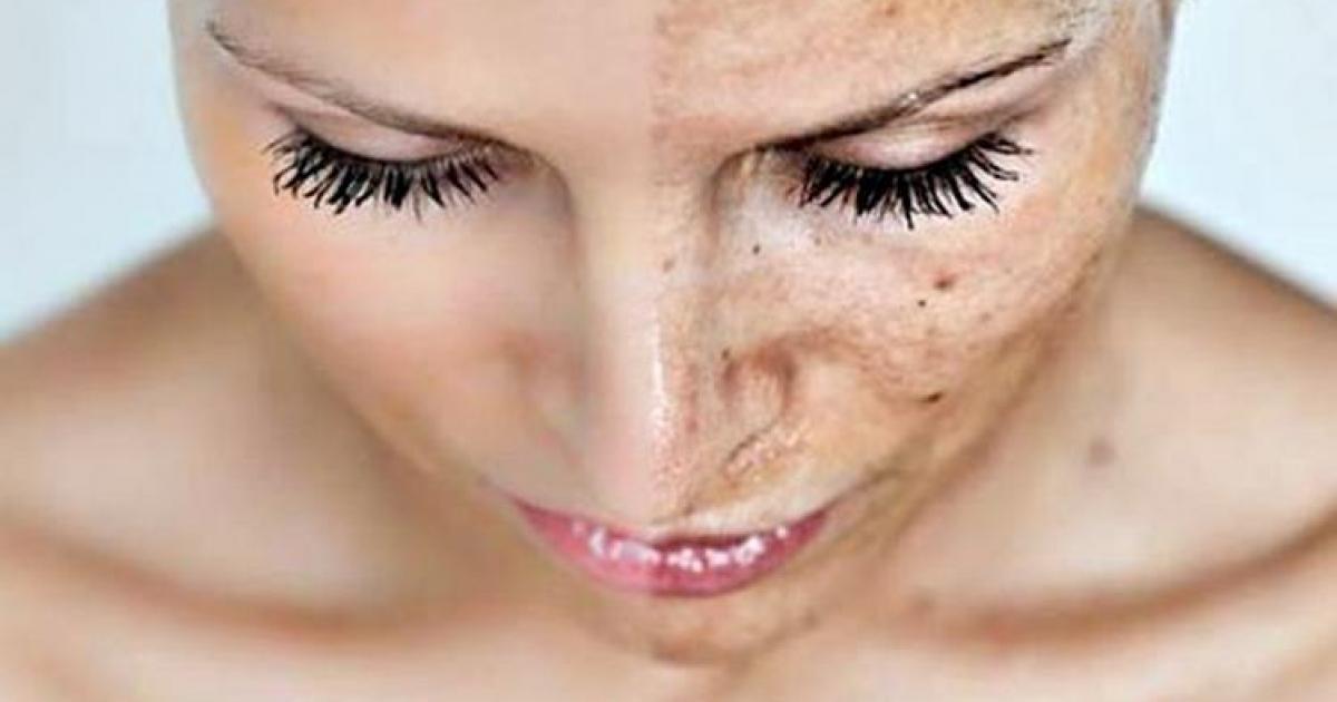 Как удалить пигментные пятна на лице